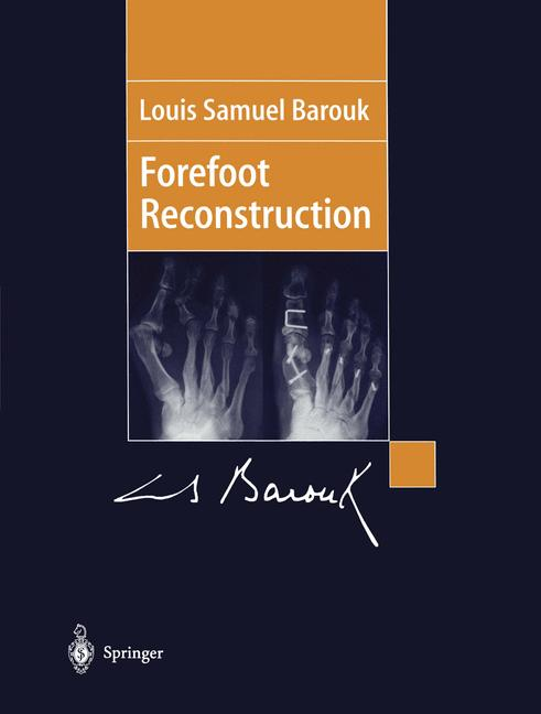 Cover of 'Forefoot reconstruction'