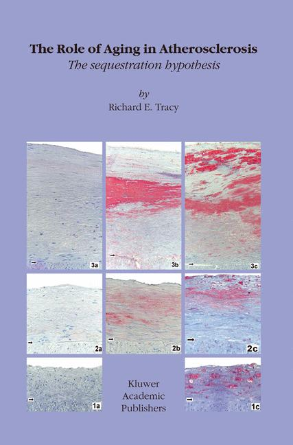 Cover of 'The Role of Aging in Atherosclerosis'