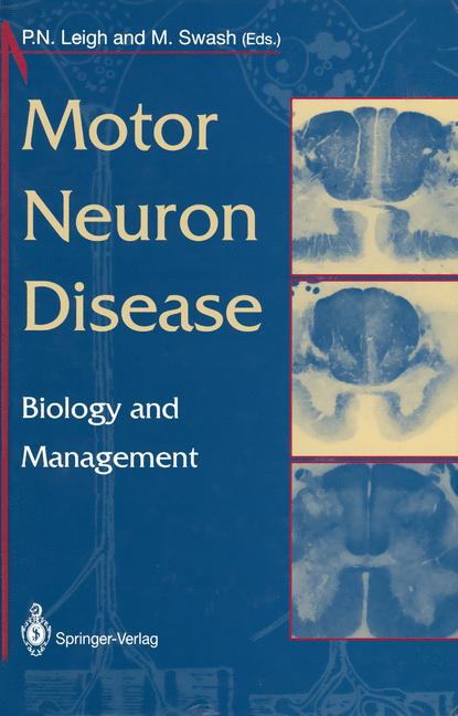 Cover of 'Motor Neuron Disease'