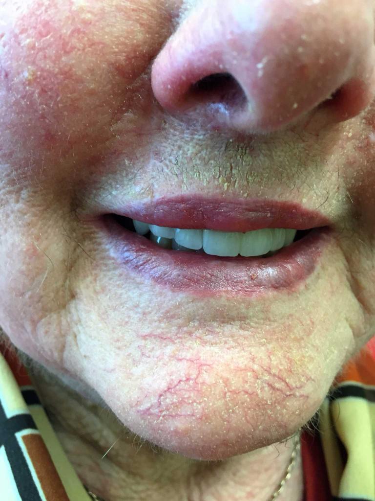 Dr Olivia Stevenson: Dermatology