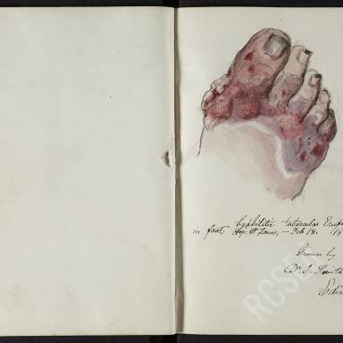 Notebook 3: Disease of the Skin from Studies in Paris