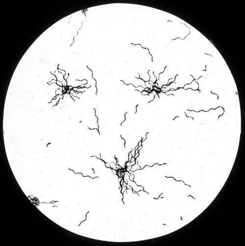 Bacillus Meseutericue