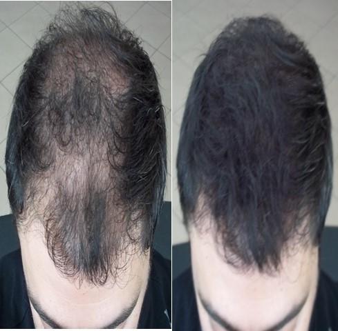 saç doldurucu sprey