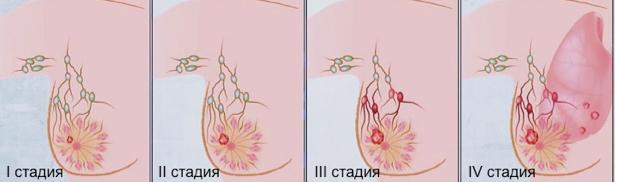 Факторы риска и симптомы развития рака молочной железы у женщин. Стадирование и лечение.