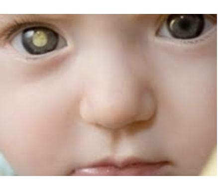 Ретинобластома глаза у детей симптомы