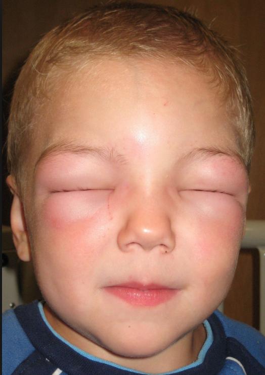 Аллергический шок у детей