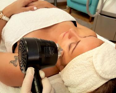 Resultados Incríveis! Tratamento Inovador CRYODERMIE®! Lifting Facial na Clín. Riviera