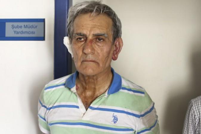 Turchia, ex capo aviazione confessa golpe...ma ha segni di percosse
