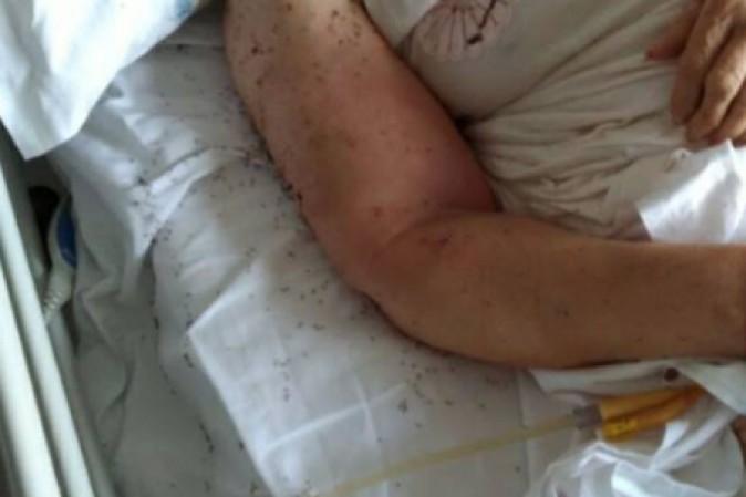 Napoli, donna abbandonata in ospedale tra le formiche