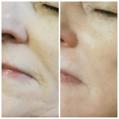 COLLAGEN LIFT