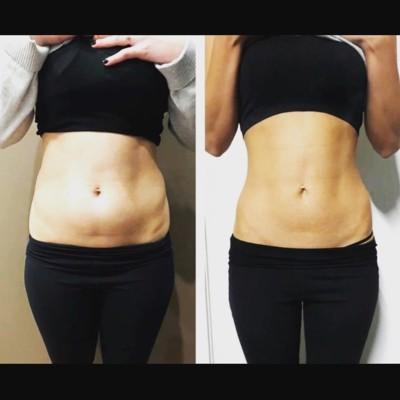 CYROLIPOLYSIS - FAT FREEZING
