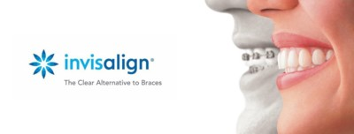 Invisalign teeth straightening, clear aligner, Personalised Invisalign Eyes & Smiles in North London