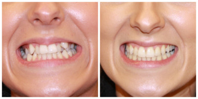Invisalign teeth straightening, invisalign treatment, clear aligner, Clever Invisalign Treatment at Eyes & Smiles in north london