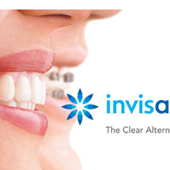 Invisalign® Up to £400 off Full Treatment, Free 3D Scan, Free Retainers