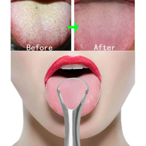 Eyes and Smiles Best Fresh Breath Treatment Clinic for bad breath halitosis condition tongue cleaning