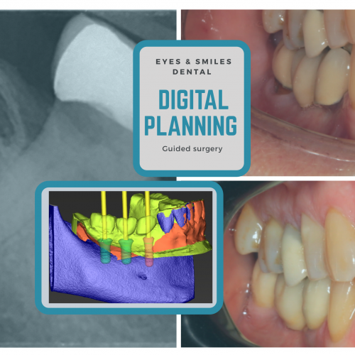 Some of the Important Dental Implant Problems and Its Complications