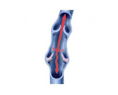 Varicocele Embolization (VE) - Operation Image 2
