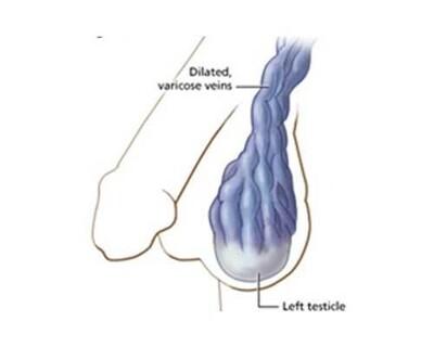 Varicocele Embolization (VE) - Operation Image 3