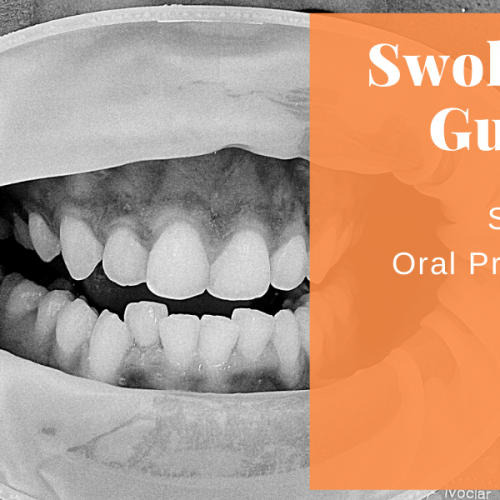 Swollen Gums Can Be A Severe Oral Problem