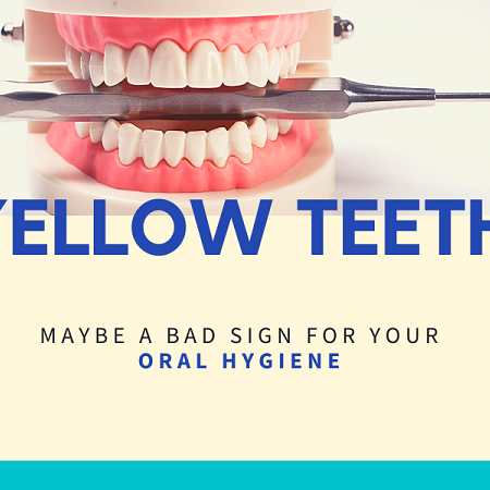 Yellow Teeth May Be a Bad Sign To Your Oral Health And Hygiene