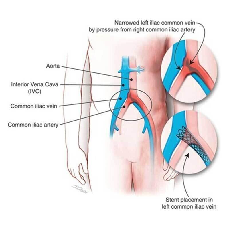 Deep Venous Disease -Image 1