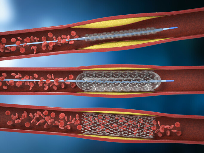 Arterial Disease - Image 1