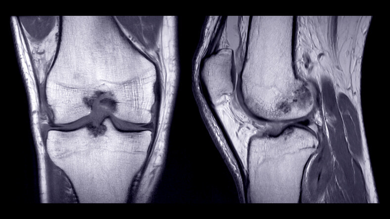 Chronic Joint & Tendon Pain Embolization - Image 4