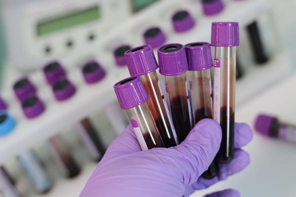 Patients seek out self testing kits as blood tube shortage worsens