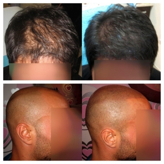 Scalp Micro Pigmentation by Hayley at Contoured Beauty