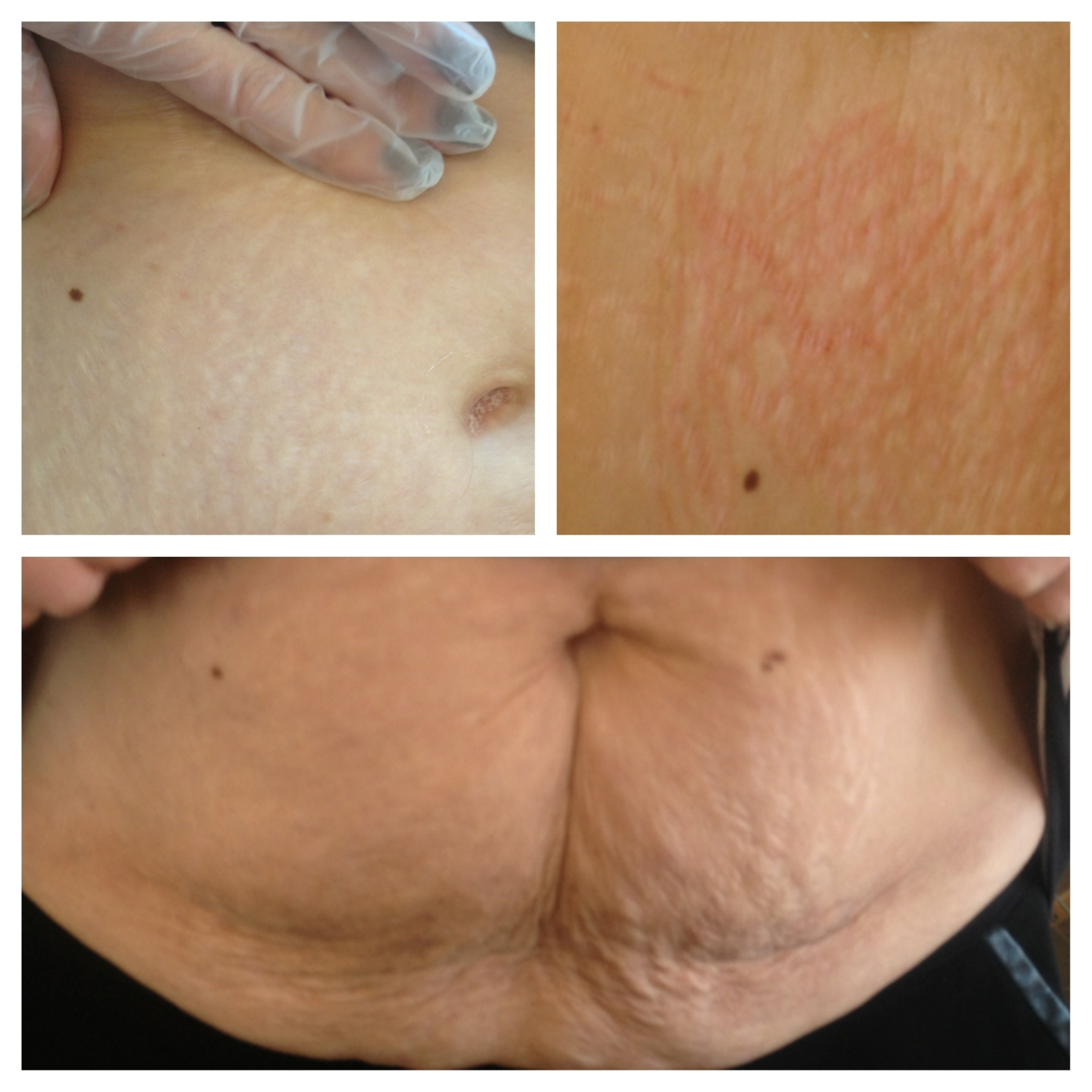 Semi permanent makeup for stretch marks fay blog for Stretch mark tattoo camouflage