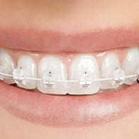 "Ceramic ""tooth coloured"" braces Barnet"