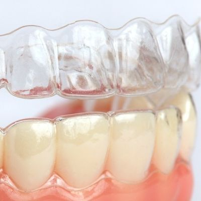 """Invisible"" clear aligner brace Finchley"