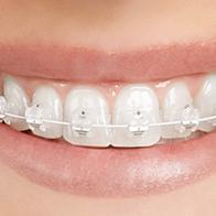 Orthodontics, Teeth Straightening, Braces At Eyes & Smiles Dental Practice in Friern Barnet, North London N11
