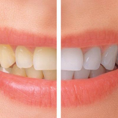 Teeth Whitening At Eyes & Smiles Dental Practice in Friern Barnet, North London N11