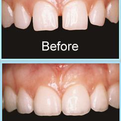 Transformational dental veneers to close up gaps between teeth in Barnet Eyes & Smiles Dental Clinic