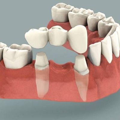 Dental bridges to replace missing teeth and gaps to restore you smile in Barnet Eyes & Smiles
