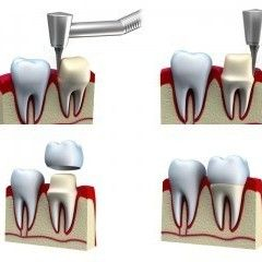 Expert Dental Crowns to strengthen and rebuild broken teeth at Eyes & Smiles Dental Clinic Southgate