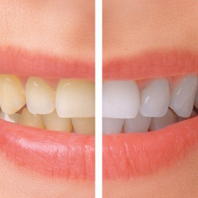 Unique Teeth Whitening in Finchley