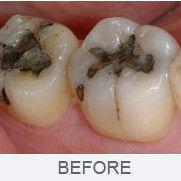 Dental Cosmetic Bonding in Finchley