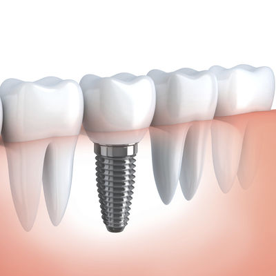 Dental Implants for Missing Teeth Replacements at Eyes & Smiles Dental Clinic Friern Barnet North London N11 Guided Surgery Straumann All On 4 Same day teeth Bone Graft ITI