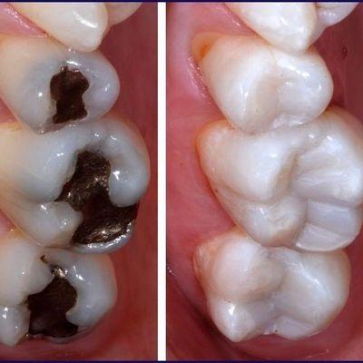 White fillings At Eyes & Smiles Dental Practice in Friern Barnet, North London N11