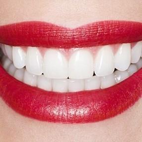 Cosmetic Treatment and Smile Makeovers At Eyes & Smiles Dental Clinic in Friern Barnet North London N11, hollywood smile, essex smile, straight white teeth, veneers, composite bonding, porcelain veneers, wedding, perfect teeth