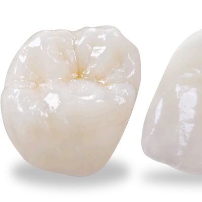 Natural Looking, High Strength Crowns At Eyes & Smiles Dental Clinic in Friern Barnet North London N11, Capped tooth, broken tooth, dark tooth, strong tooth, emax, ceramic crown, porcelain crown, strengthen tooth, post crown, cracked tooth,