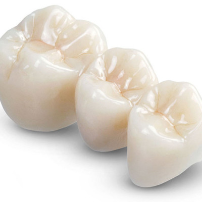 Bridges & Missing Teeth Replacements  At Eyes & Smiles Dental Clinic in Friern Barnet North London N11, Gaps, Maryland bridge, sticky bridge, resin bonded bridge, fixed bridge, ,