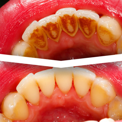 Hygienist Services and Teeth Stain Removal At Eyes & Smiles Dental Clinic in Friern Barnet North London N11, Healthy gums, swollen gums, bleeding gums, smoking stains, tea stains, coffee stains, air polish, scale and polish, aquacare, floss, electric toothbrush, gum treatment, periodontal treatment,