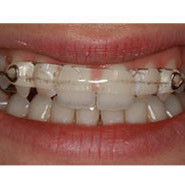Inman Aligner Removable Braces Southgate