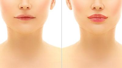 Facial Aesthetics >