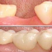 Emergency Dentist N11, Composite Tooth Bonding N11, Teeth Whitening N11