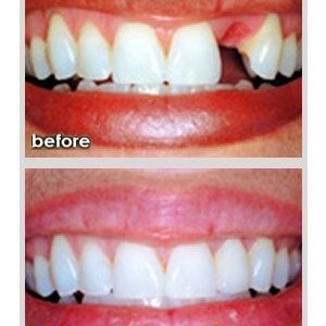 Natural and fixed dental bridges to replace missing front teeth in Finchley Eyes & Smiles Dental Clinic