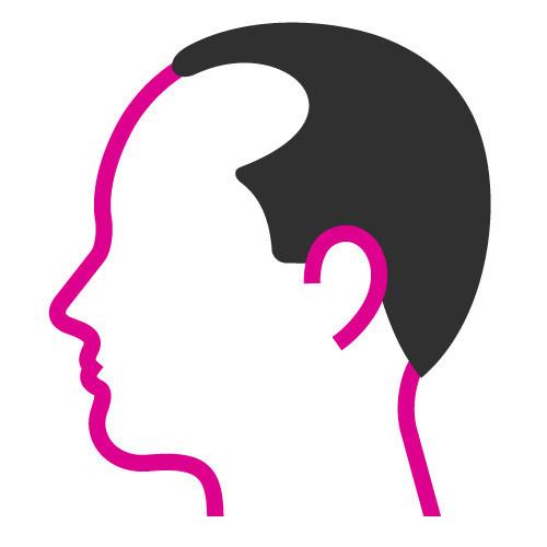 Scalp Micropigmentation Cardiff, Hair Tattoo Cardiff, Hair Loss Treatment Cardiff